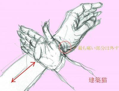 腱鞘炎(ドケルバン病)の治し方